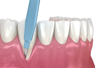 Periodental step 1